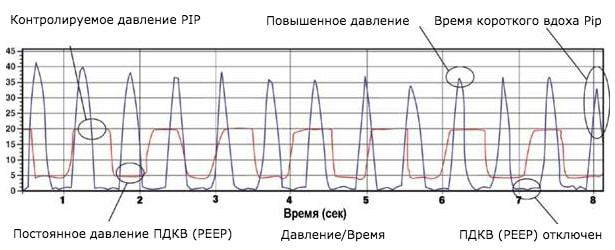График работы Neopuff