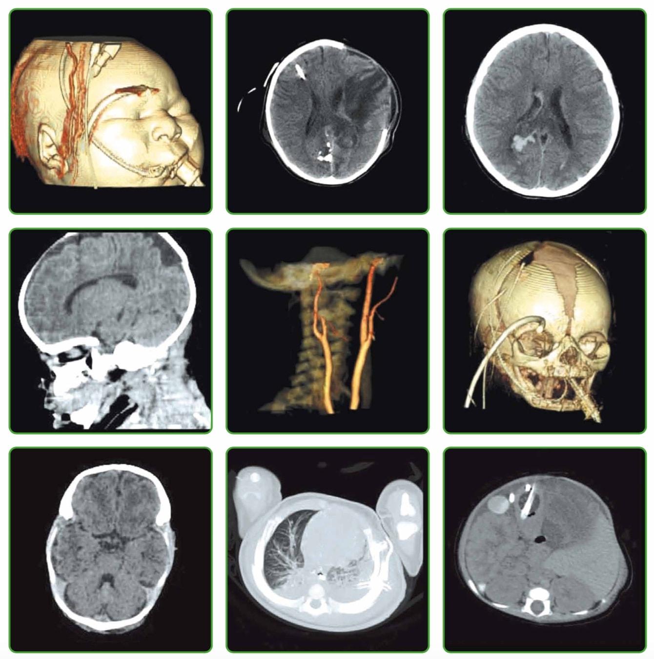 Детские клинические снимки