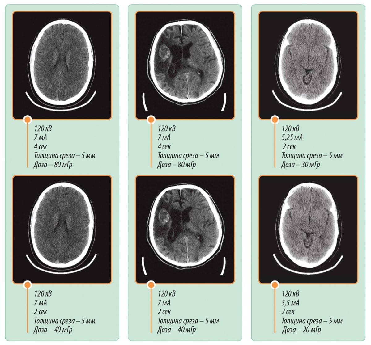 Снимки головного мозга на МРТ BodyTom