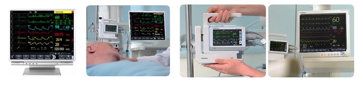 Пример использования системы мониторинга BeneView TDS