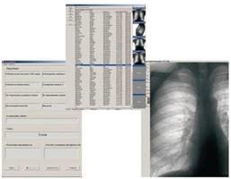 Клинические снимки флюрографа Ренекс в укладке