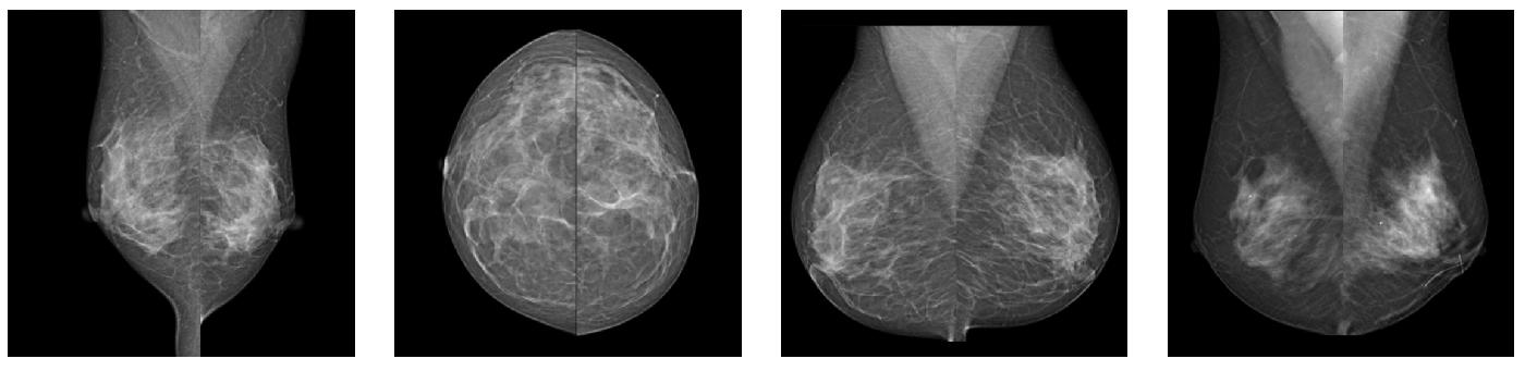Примеры снимков сделанных маммографом MX-600