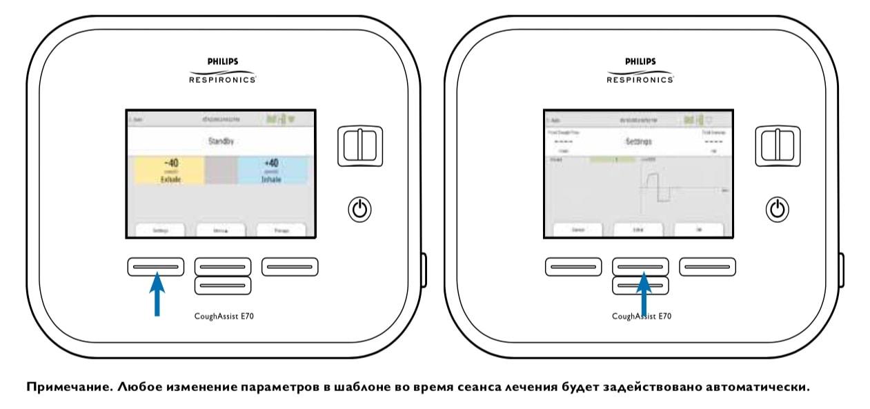 Управление отображением шаблонов - настройка CoughAssist E70