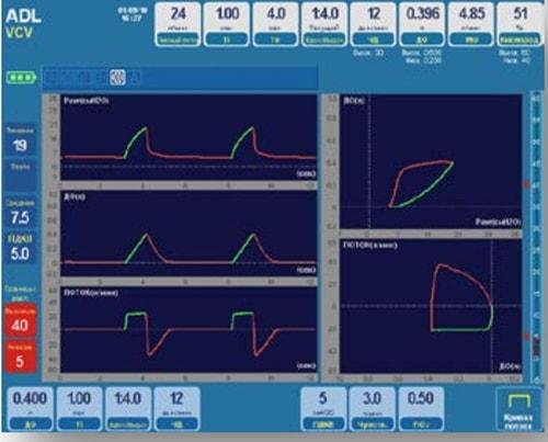 Элементы управления и сенорный дисплей Ньюмовента