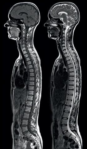 Исследование центральной нервной системы