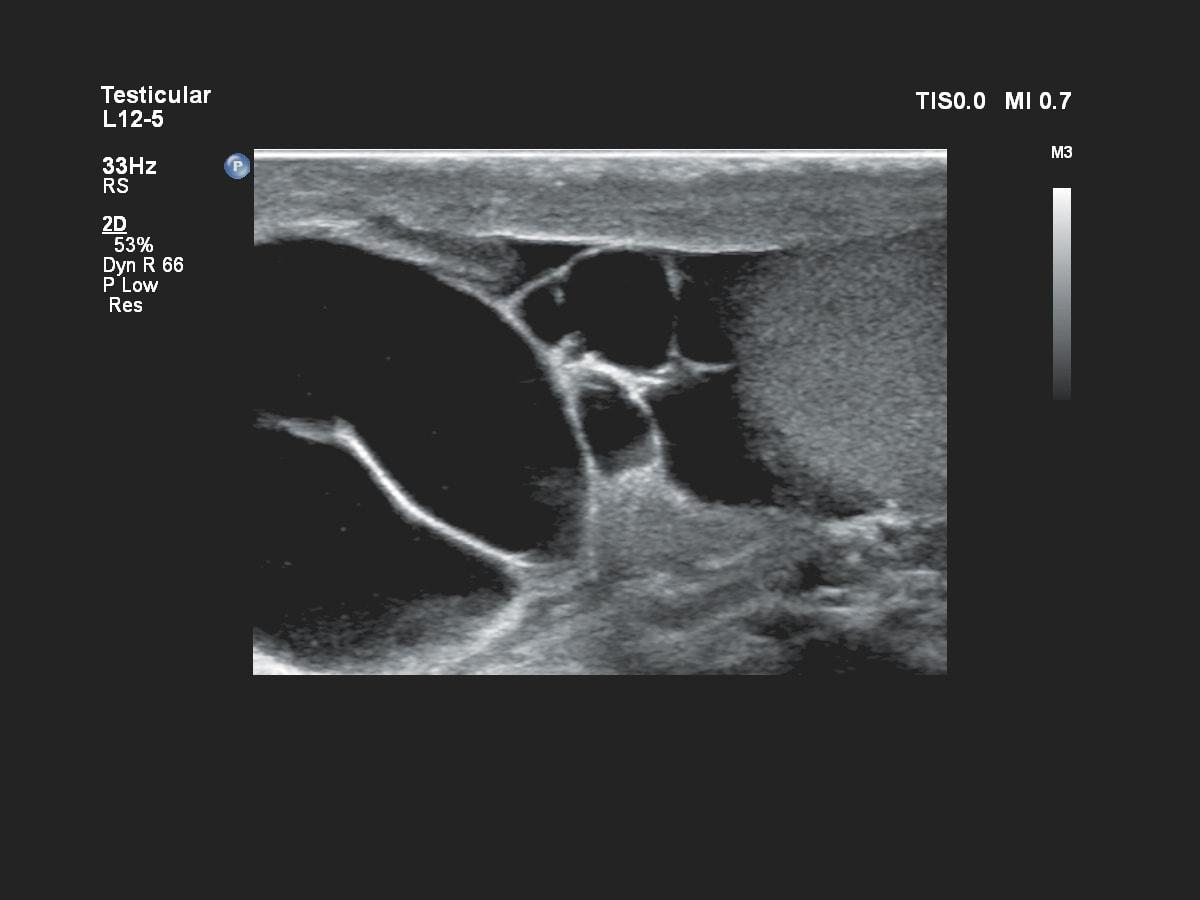 Клинические изображение Affiniti 70