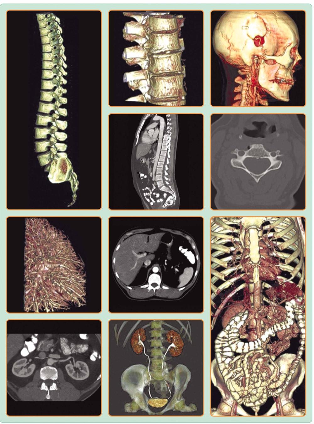 Клинические изображения - взрослые снимки на МРТ бодитом