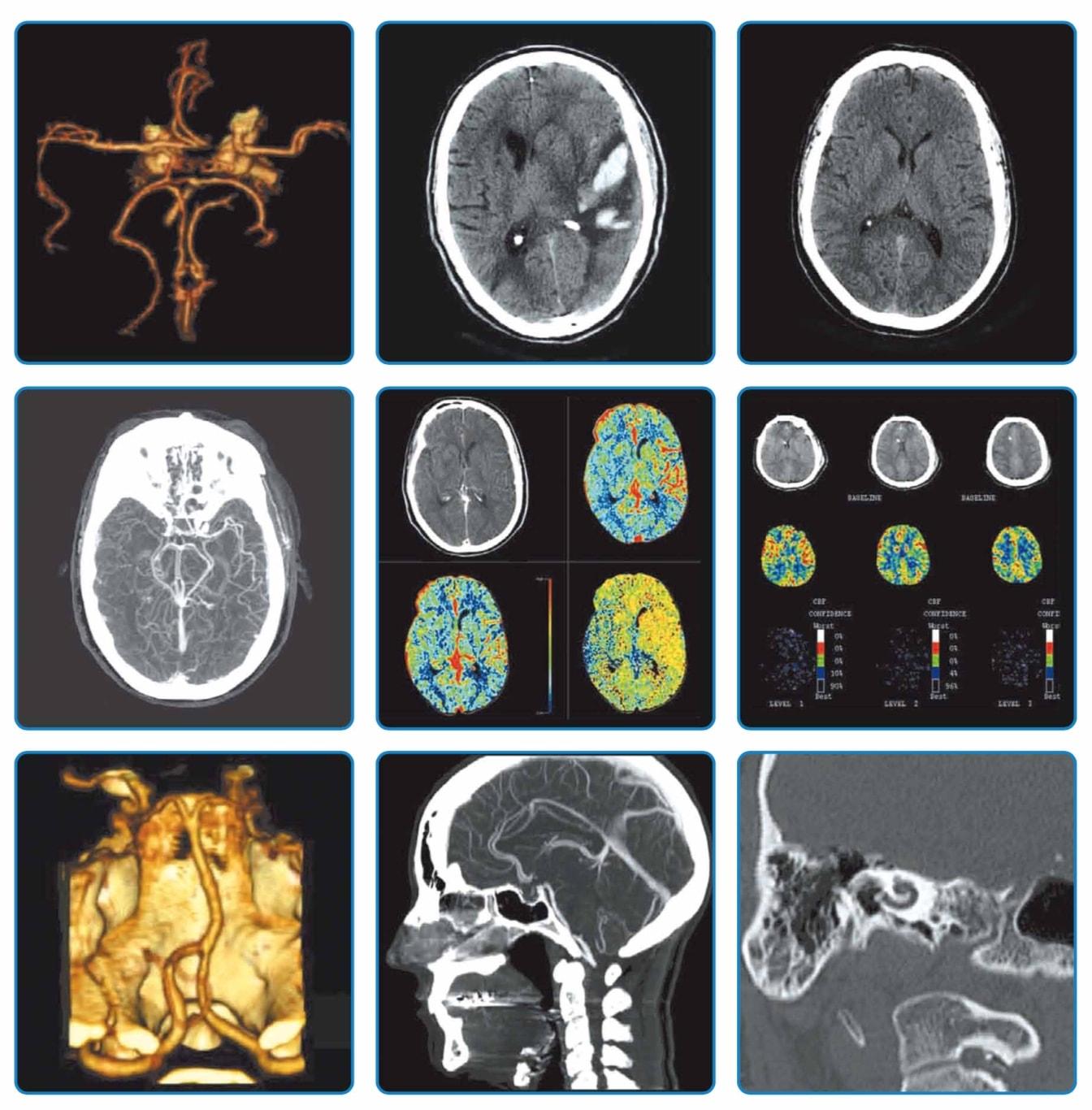 Клинические снимки взрослых