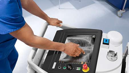 MobileDiagnost wDR - высокое качество изображений рентгена