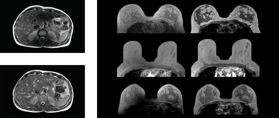 Пример снимка на МРТ 3 тл