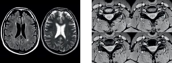Сагиттальные отображения полностью головного и спинного мозга