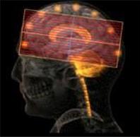 SmartExam(опция) для МРТ Ачива