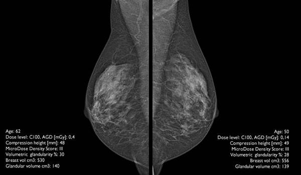 Снимок на спектральный маммограф от Philips