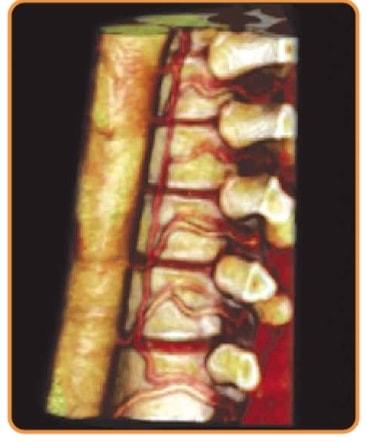 Томограф для спинальной нерохирургии