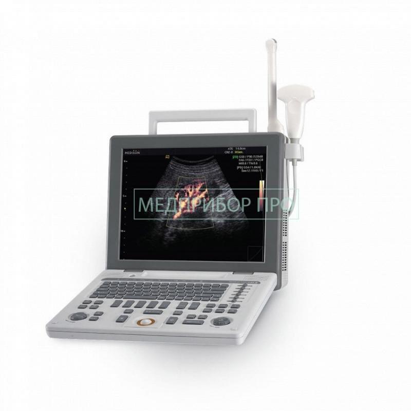 Портативный УЗИ SonoAce R3 от Samsung Medison