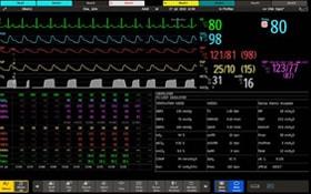Интерфейс компьютера для мониторигна больного