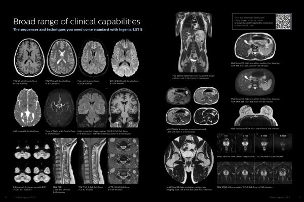 Новый МР Томограф ingenia 1,5 ts от Philips - клинические снимки