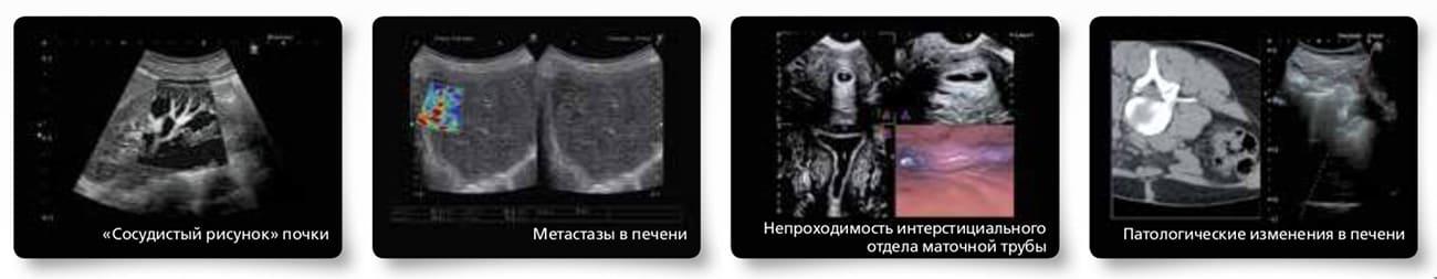 Клинические снимки