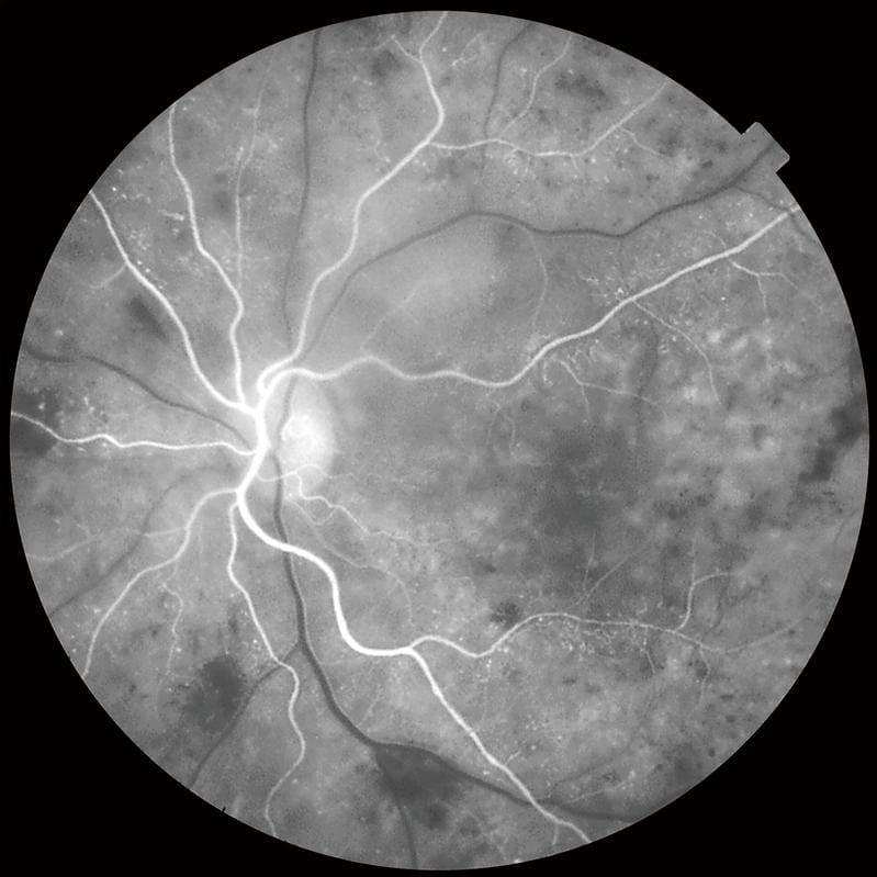 Клинические снимки глаза