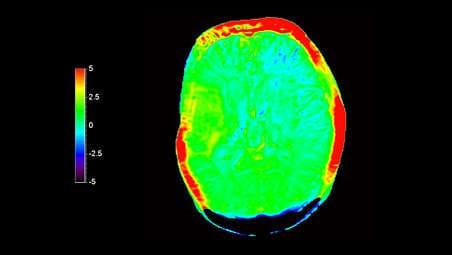Диагностики в нейроонкологии