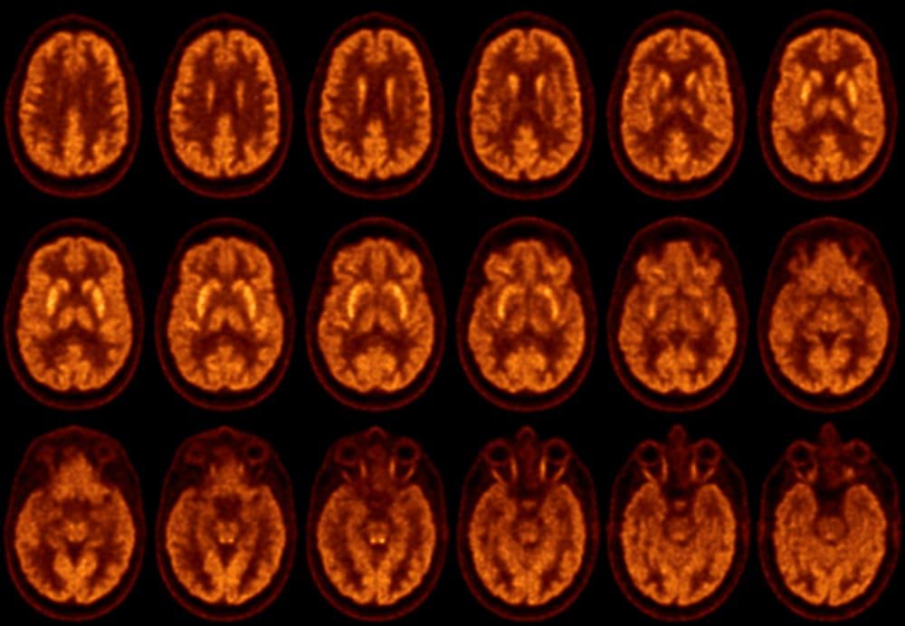 Исследование головного мозга с использованием ФДГ