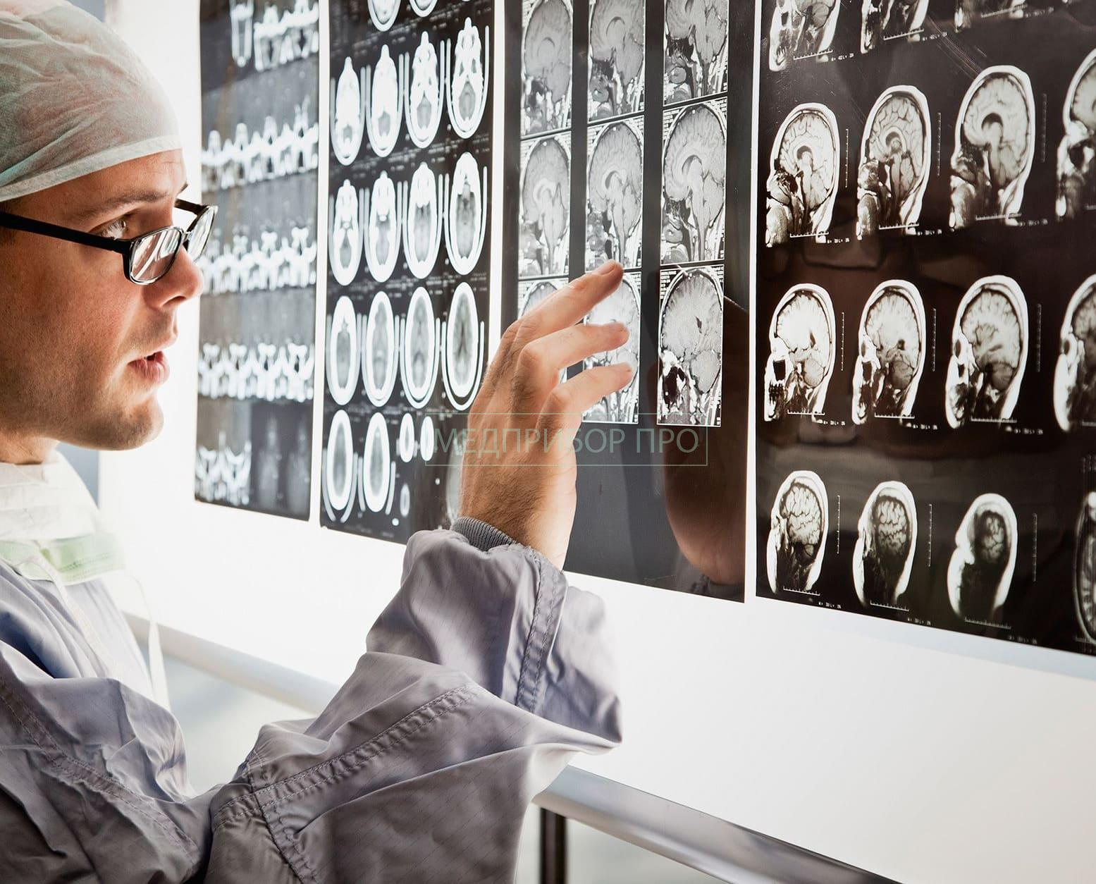 Вредоносные программы могут изменить изображения МРТ и КТ-исследований
