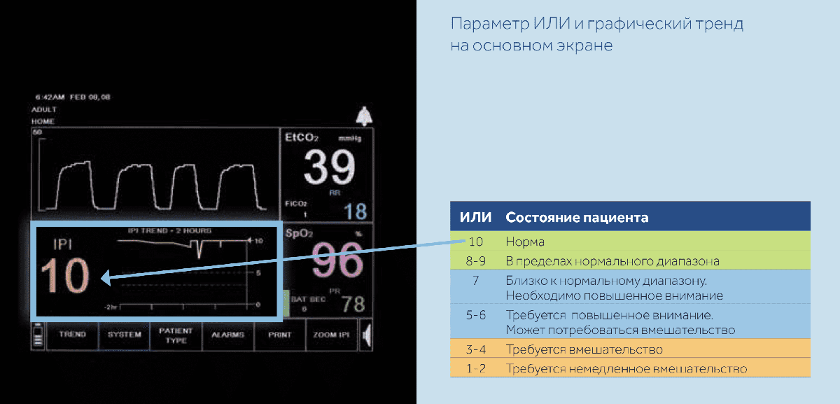 Параметр ИЛИ и графический тренд на основном экране Capnostream 20