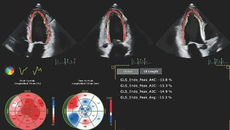 Автоматизация для robust, доказанного возпроизводимого сердечного квантификации и в 2D и в 3D