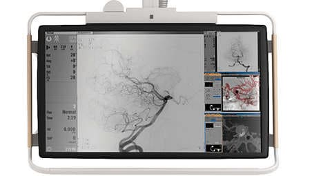 Монитор FlexVision XL display: увеличенные изображения с полным разрешением