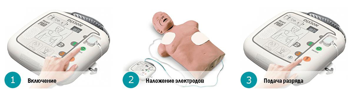 Простое управление дефибриллятором в 3 шага